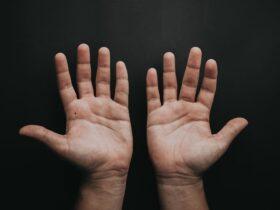 nốt ruồi lòng bàn tay