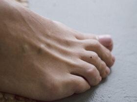 nốt ruồi ở ngón chân