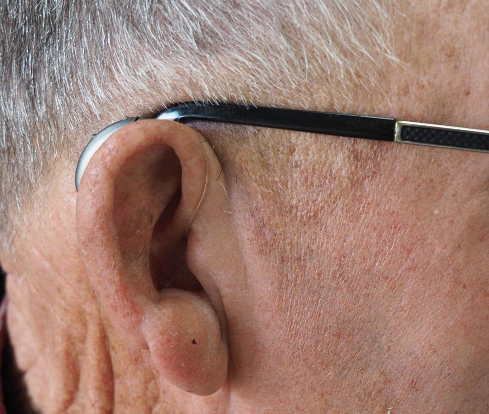 nốt ruồi ở dái tai