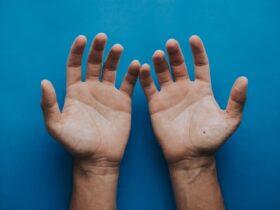 nốt ruồi son lòng bàn tay